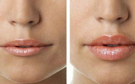 Контурная пластика губ, увеличение губ. Услуги косметолога на дому