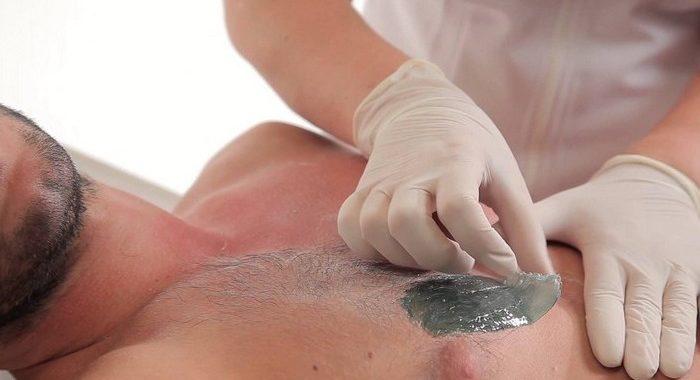 Удаление волос. Мужская депиляция. Услуги косметолога в Москве